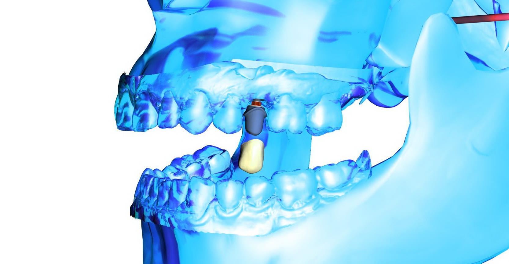 Sofortversorgung, Zähne an einem Tag. Implantat und Zahn
